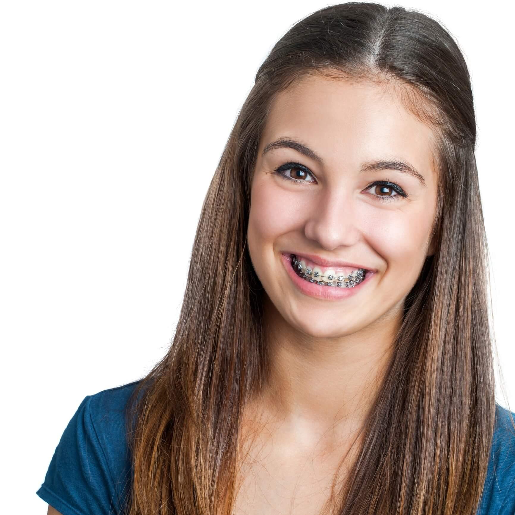 Teen braces, Smile Envy Dental Group, Atlanta, GA