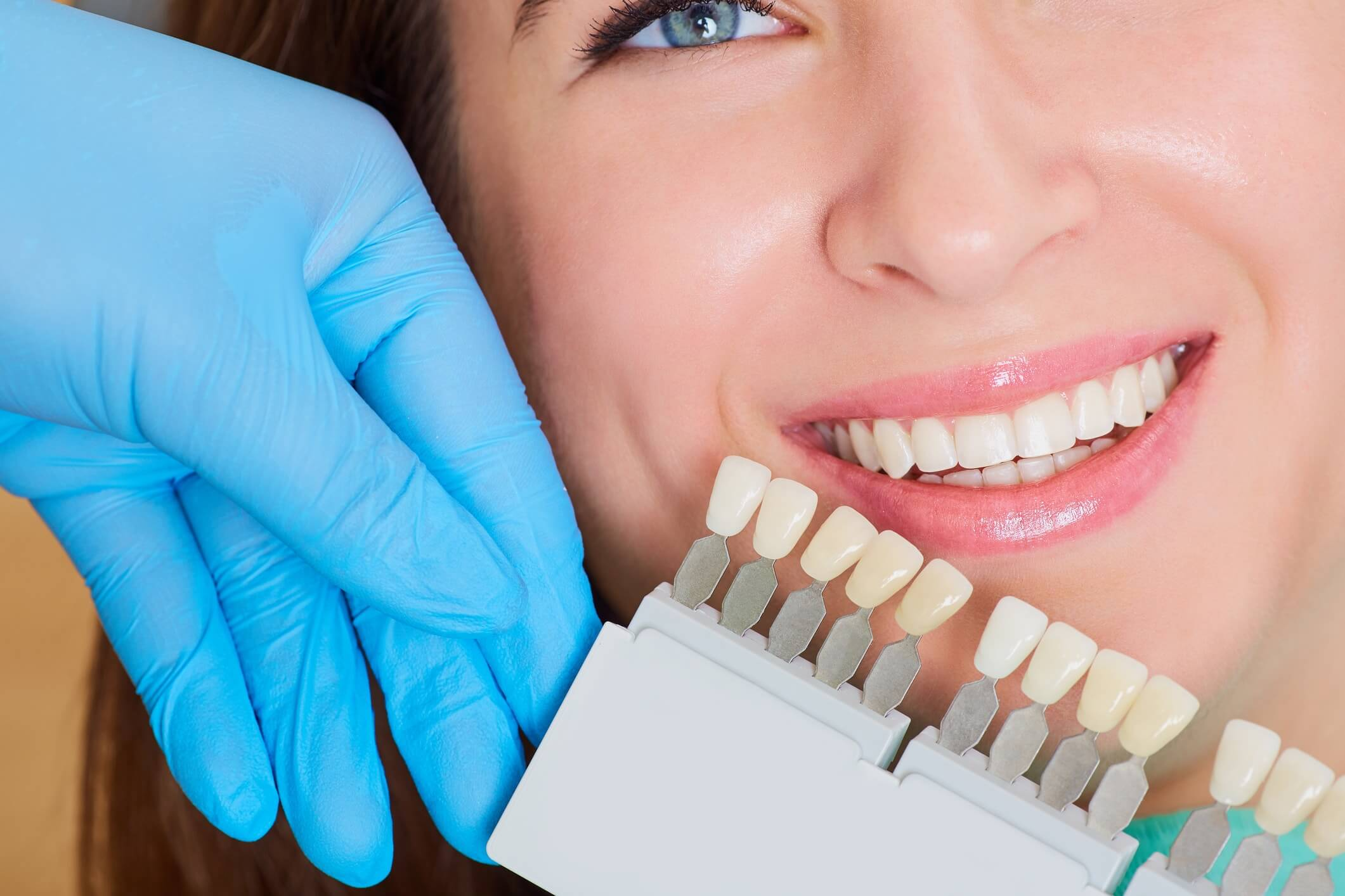 Dental Crowns, Smile Envy Dental Group, Atlanta, GA